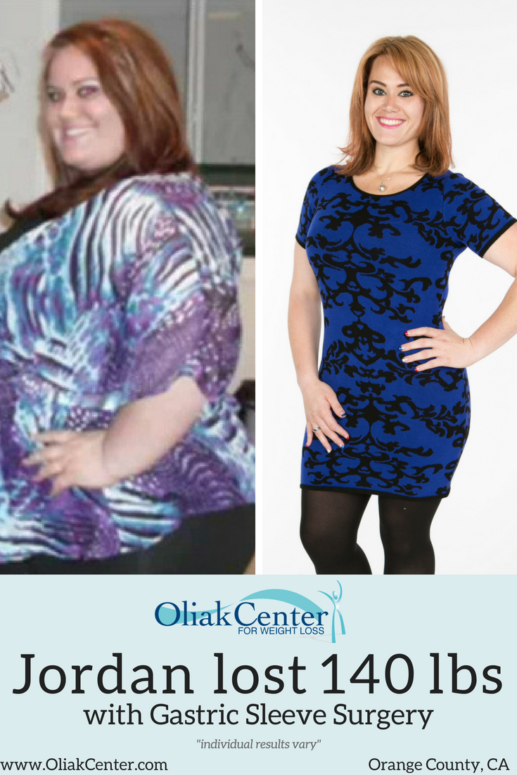 Need To Know More About The Gastric Sleeve See The Success Of This