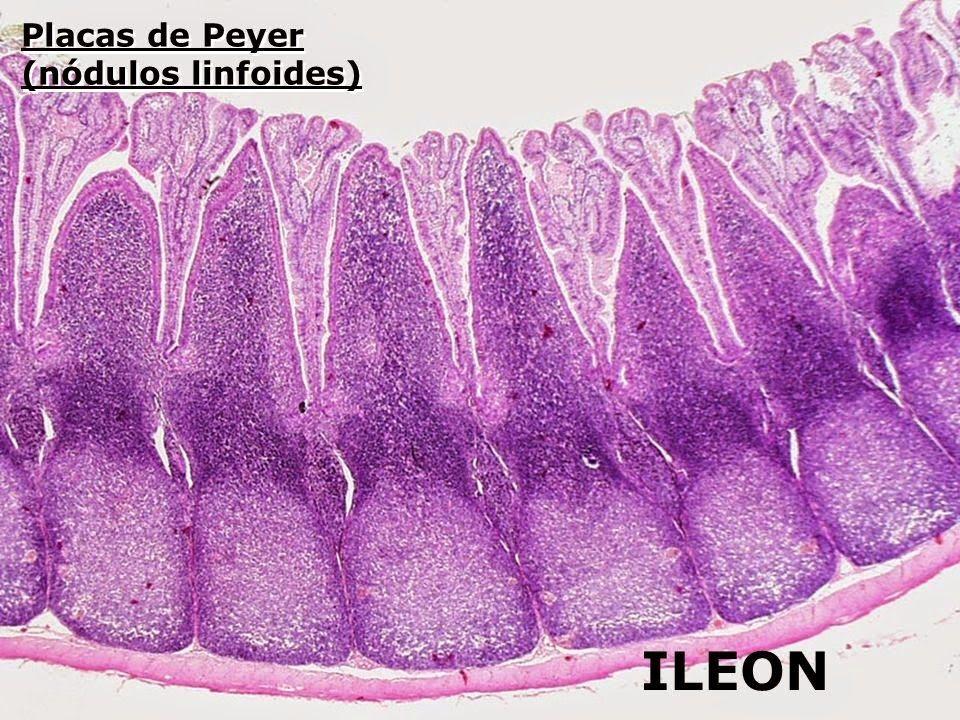 Bonito Ubicación íleon Composición - Imágenes de Anatomía Humana ...