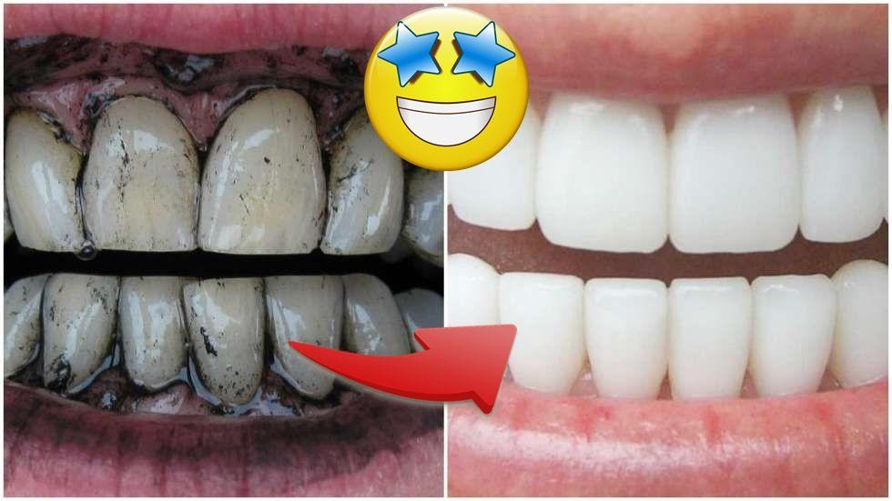 Truque Incrivel Para Clarear Os Dentes Em 2 Minutos Dicas Caseiras