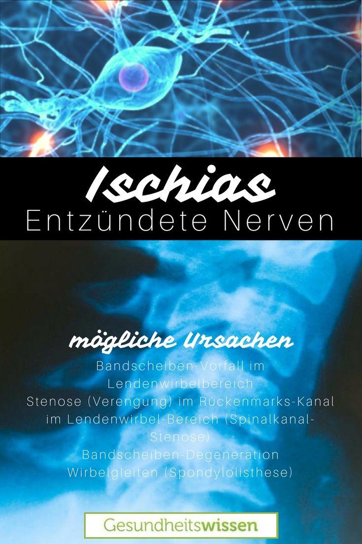 Der Ischias-Nerv ist der größte Nerv im menschlichen Körper. Dabei ...