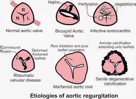 Aortic Valve Anatomy Sketch Illustrating Various Etiologies Of