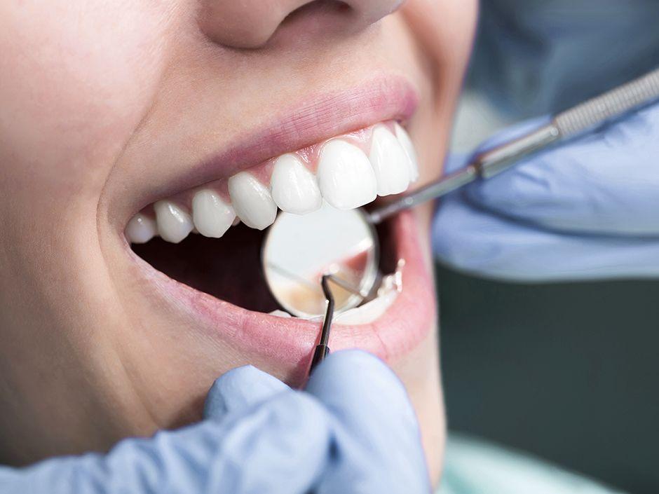Dentist Office Near Me Dental fillings, Dental, Holistic