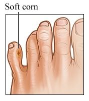 hard skin between toes