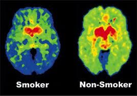 A Pet Scan Looks At The Amount Of Energy Being Expended In Certain