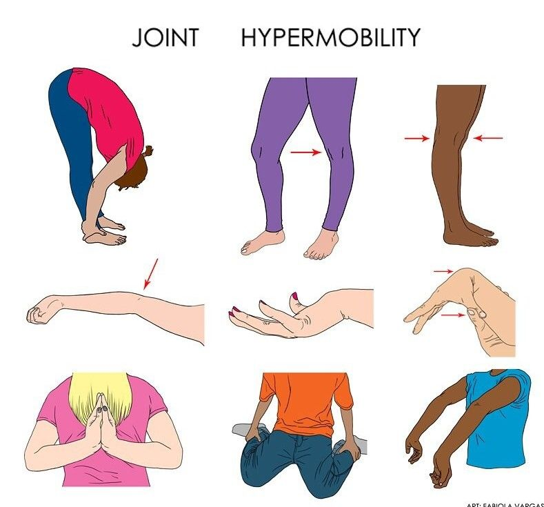 Joint Hypermobility   Ehlers-Danlos Syndrome   Pinterest ...