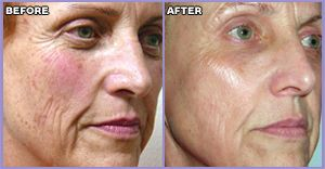 Before And After Ipl Intense Pulse Light For Rosacea