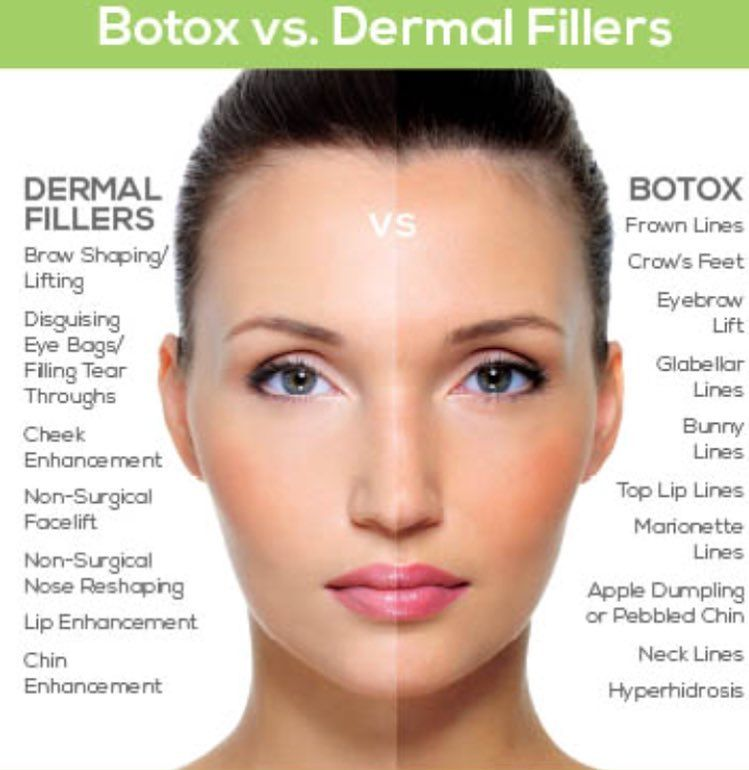The difference between Botox & Fillers Botox contains