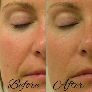 Hydrafacial Before And After Realresults Hydrafacial Facial