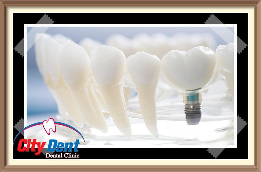 Blog مركز سيتى دينت لتجميل وتقويم وزراعة الأسنان Home Decor Decor Light Bulb