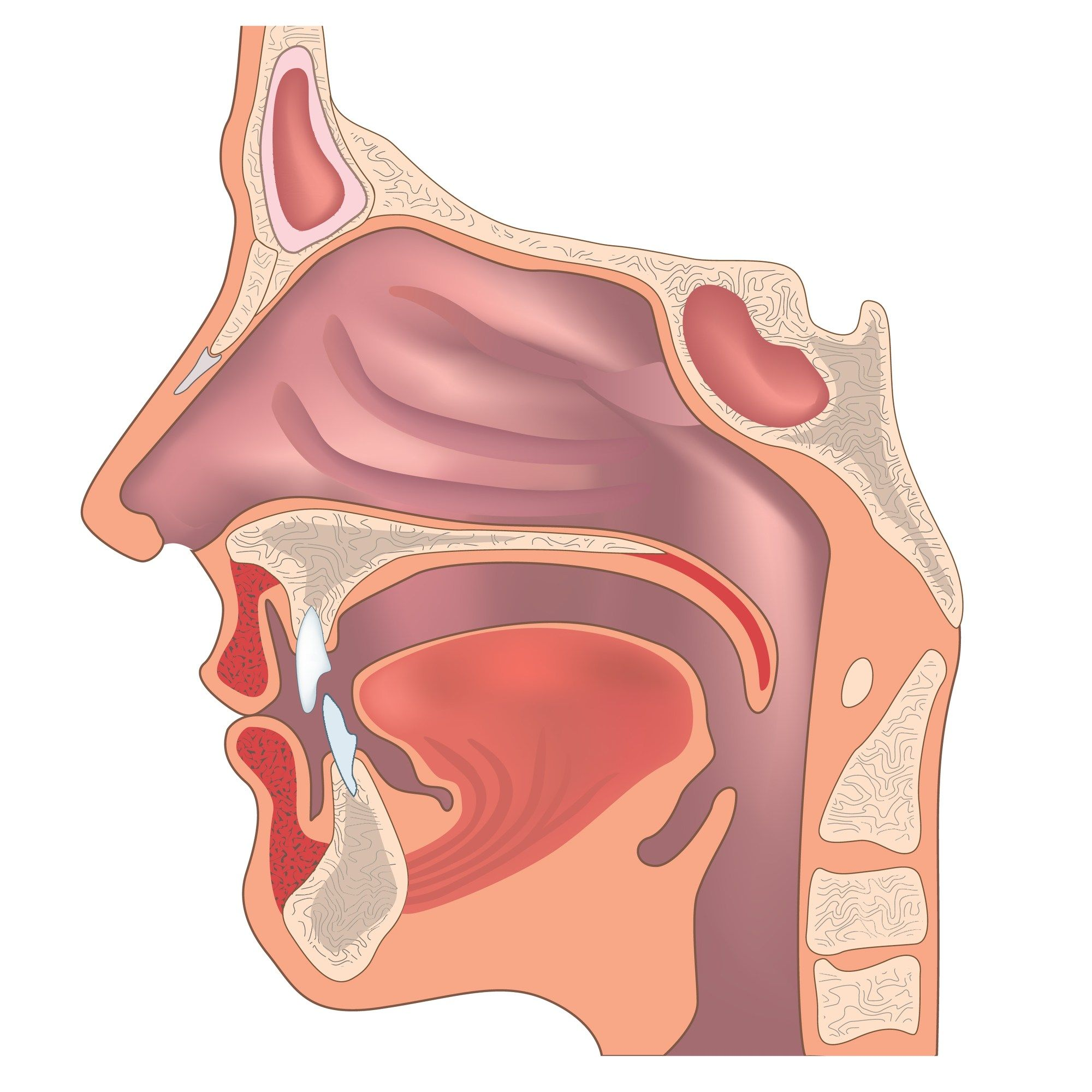 How to Treat Erroneous Nasalization on Phonemes | Throat ...
