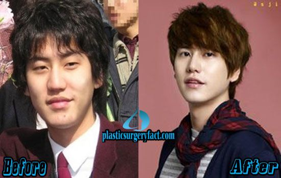 kyuhyun kpop plastic surgery before and after http