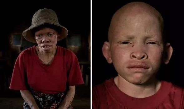 Sold by their own families for £50k: Tanzanias albinos