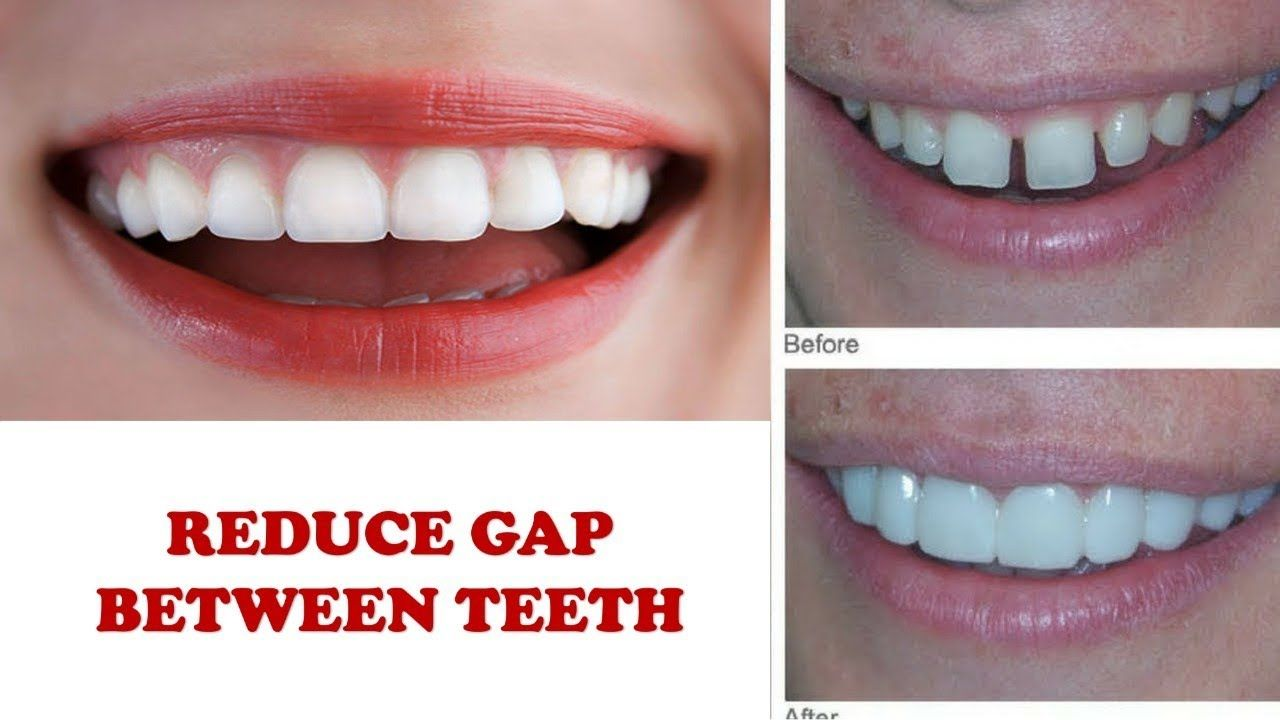 How to reduce gap between teeth naturally home remedies