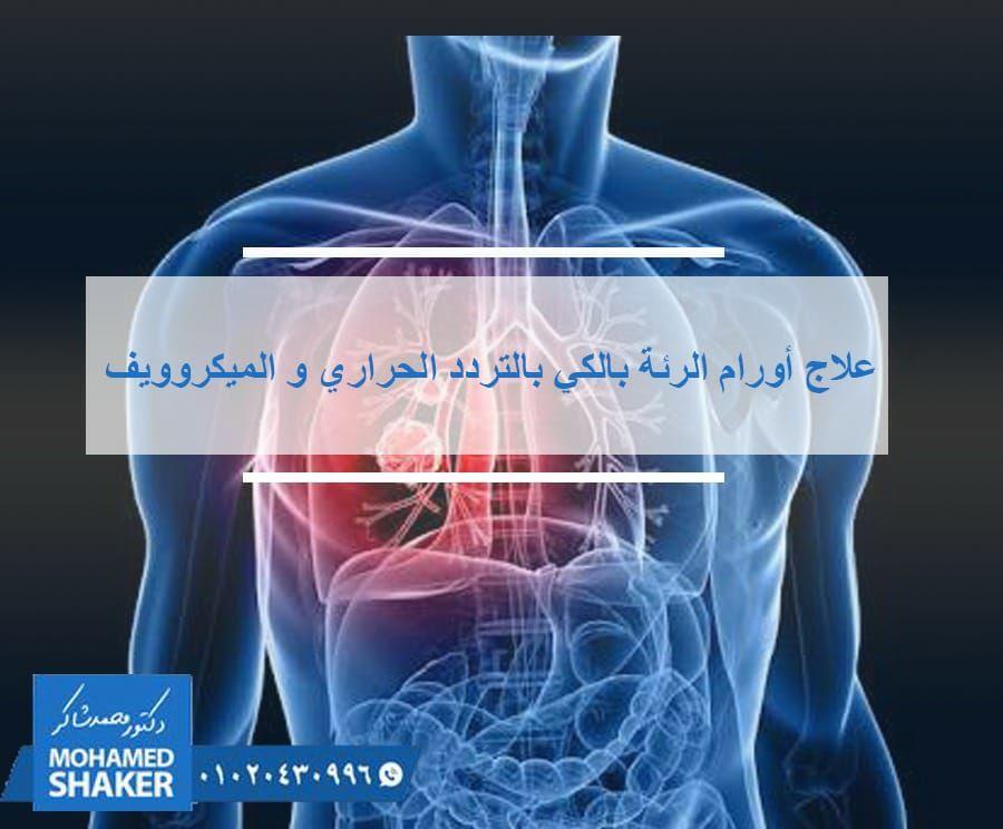 و الان يوجد علاجا لاورام الرئة بعيدا عن العلاج الكيميائي و الجراحي حيث يمكن الاسترشاد بالأشعة المقطعية فى وضع إبرة دقيقة دا Movie Posters Movies Doctor