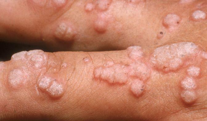Hpv virus is it dangerous. Human Papillomavirus - HPV - Nucleus Health hpv cancer cells treatment