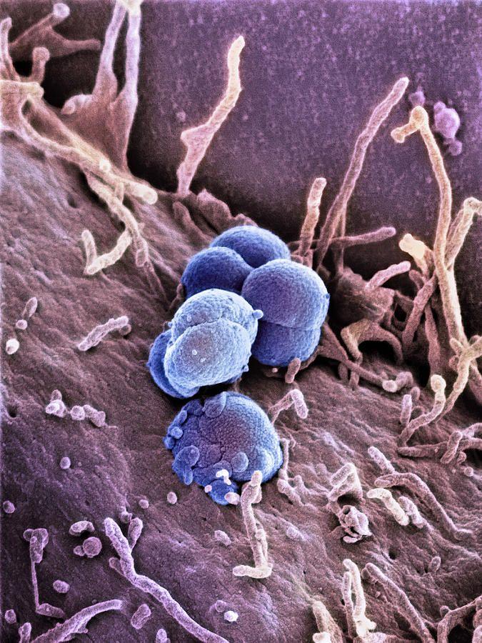 La gonorrea vista al microscopio SEM y coloreada | Monera ...