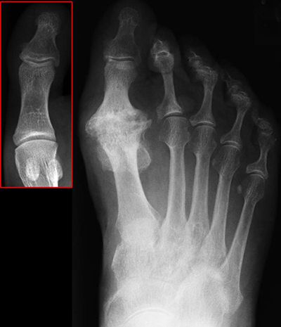 Big toe joint arthritis stiffness in the big toe joint can this do it yourself big toe joint pain relief treatment can be done by anyone in just 3 simple stepsthat you can do yourselfthis treatment will fix of solutioingenieria Images