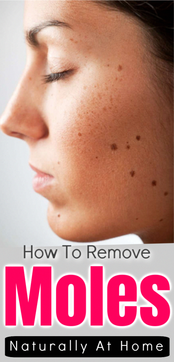 How To Remove Skin Tag And Moles At Home With Natural Ingredients Moles Skin Skincare Skincaretips Skincarerouti In 2020 Mole Removal Skin Moles Skin Tag Removal