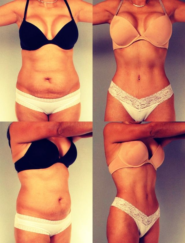 Detox to lose belly fat in a week
