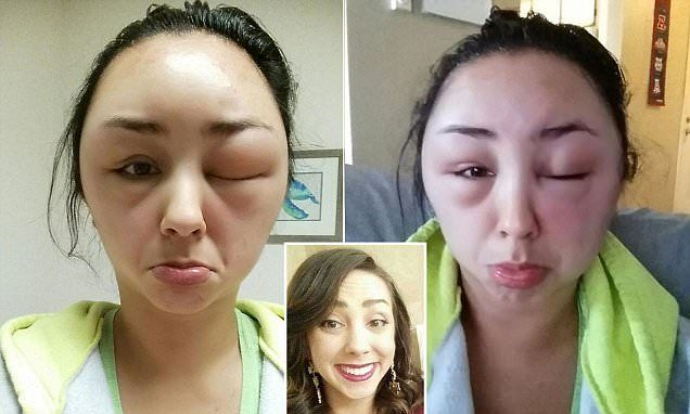 Woman Documents Scary Allergic Reaction To Hair Dye In Dramatic Images Dyed Hair Hair Dye Allergy Face Allergic Reaction