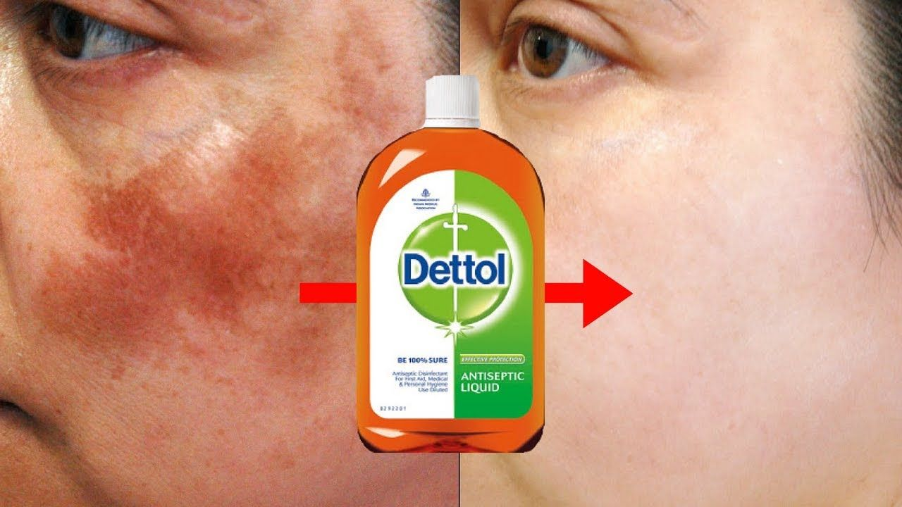 Dettol To Treat Pigmentation, Dark Spots & Acne Scars