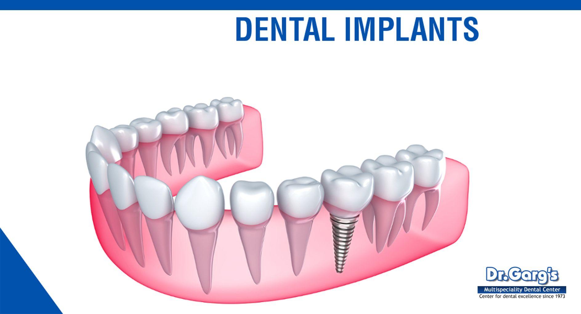 Dental implants cost in delhi affordable dental implants