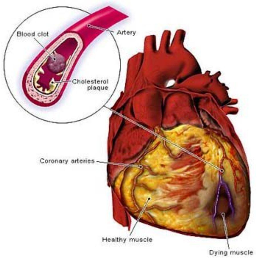 Vivir Longevo Y Saludable Es Posible Benefits Of Drinking Water Heart Disease Symptoms Coronary Heart Disease