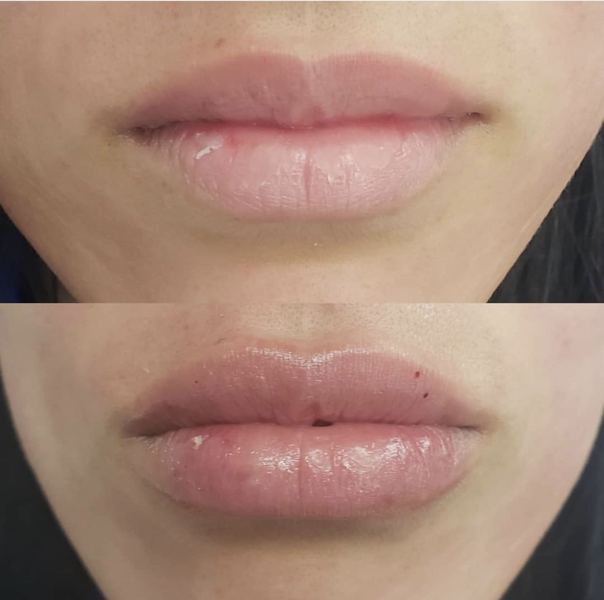 Happy with first time lip injections perfection Half syringe