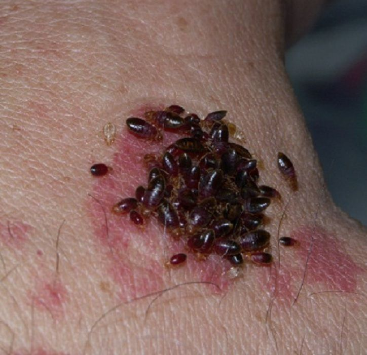 Dealing With and Killing Cimex lectularius, The Bed Bugs