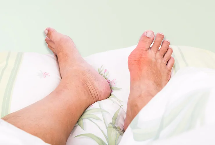 How to Ease a Gout Attack: Treatment and Home Remedies - eMediHealth