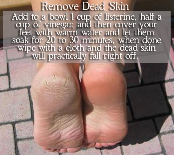 Remove Dead Skin Foot Soak Wrinklesskin Dead Skin On Feet Dead Skin Dry Skin Causes