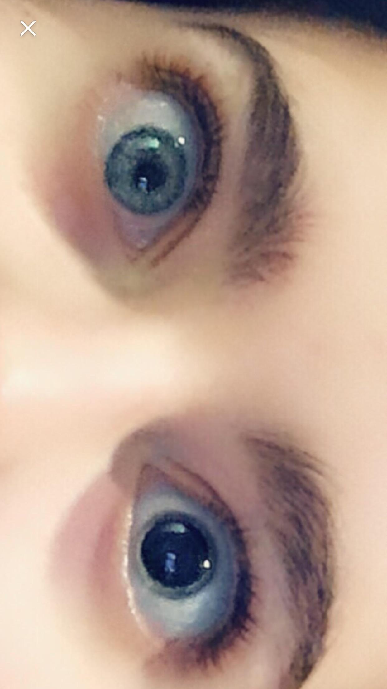 Single eye dilation Ocular, Eyes, Dilations