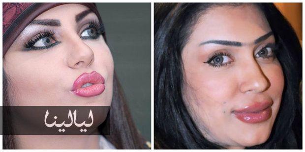 صور أفشل حالات نفخ الشفاه للفنانات موقع ليالينا Beauty Celebrities Nose Ring