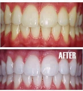 -Put a tiny bit of toothpaste into a  small cup,  mix in one teaspoon baking soda  plus one  teaspoon of hydrogen peroxide, and  half a  teaspoon water.  Thoroughly mix then brush your  teeth for two minutes. Remember to  do it once a week until you have  reached the results you want. Once  your teeth are good and white, limit  yourself to using the  whitening treatment once every  month or two.