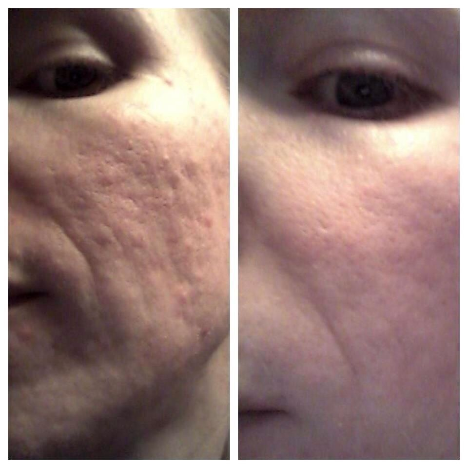 Real Science Real Results Nerium International Uneven Skin Texture Acne Scar Removal Treatment Skin