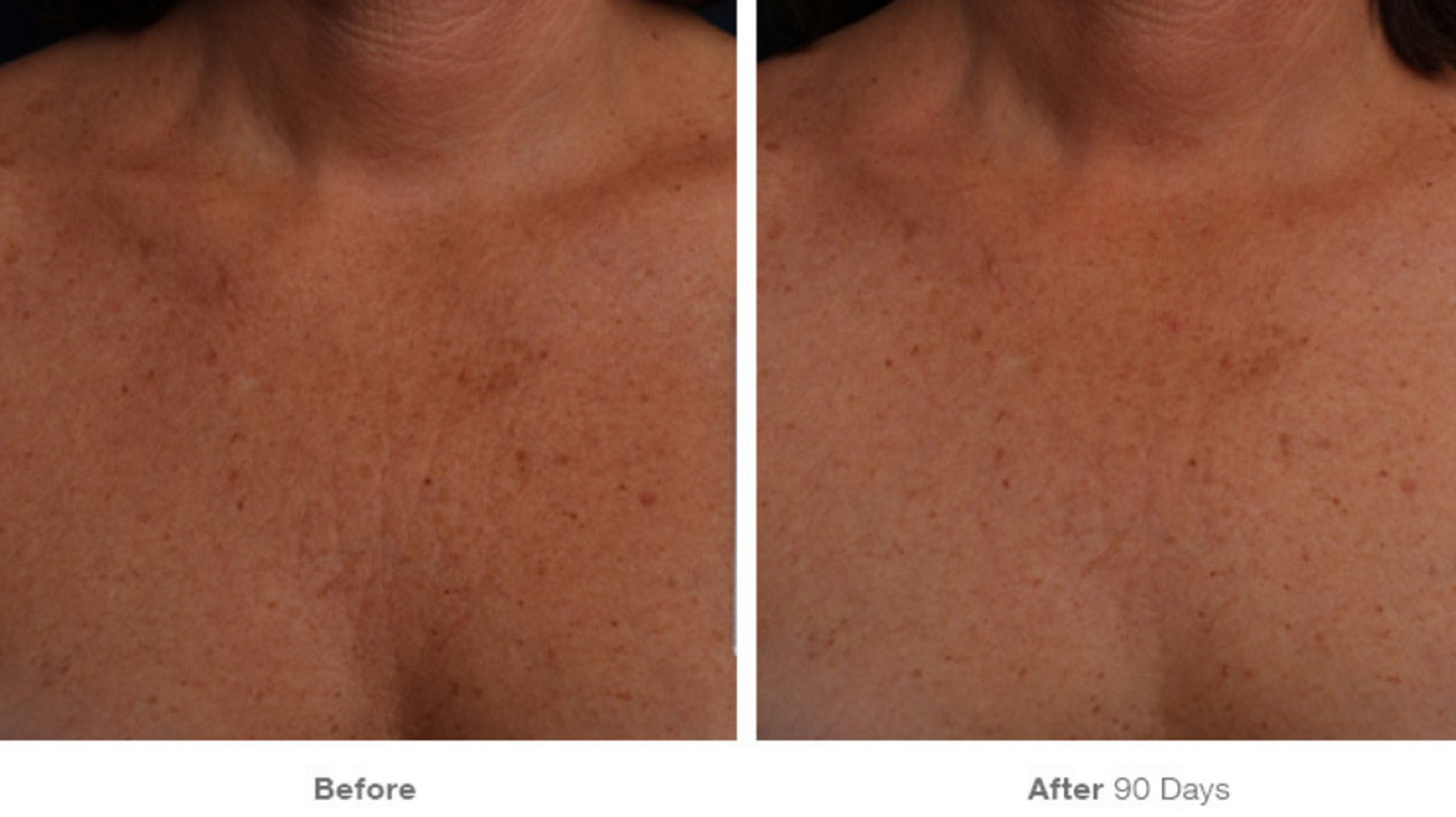Ultherapy® is FDA-cleared to improve décolletage lines and wrinkles! Check out our gallery of before and afters.  *The non-invasive Ultherapy® procedure is U.S. FDA-cleared to lift skin on the neck, on the eyebrow and under the chin as well as to improve lines and wrinkles on the décolletage. The most common side effects reported in clinical trials were redness, swelling, pain, and transient nerve effects. For full product and safety information, visit www.ultherapy.com/IFU.