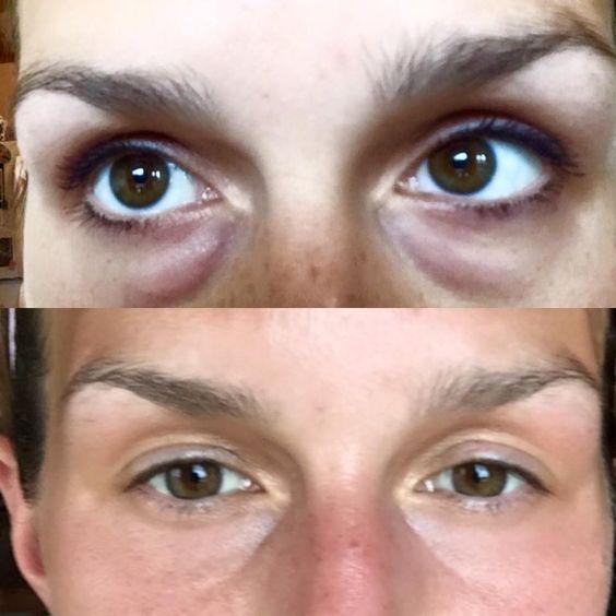 Dark Circle Eye Serum | The Oil Academy | Dark eye circles ...