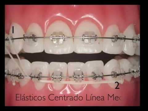 Forsus Ez2 Corretor De Cii 3m Passo A Passo Youtube Dental Braces Orthodontics Braces Colors