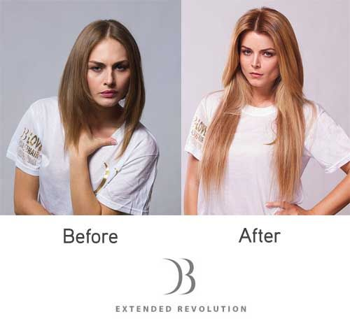 27+ Thinned out hair before and after pictures ideas