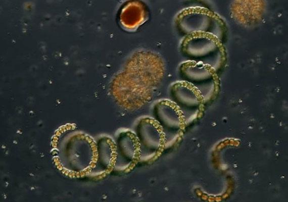 baktériumok végbélrák hartmann s eljárás