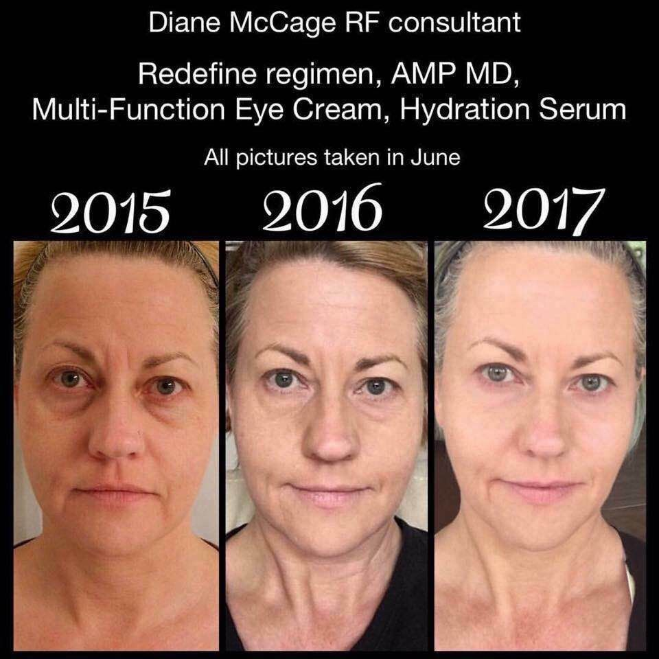Aging Backwards Redefineaging Realresults Rodan Fields Skin Care My Rodan And Fields Anti Aging Skin Products