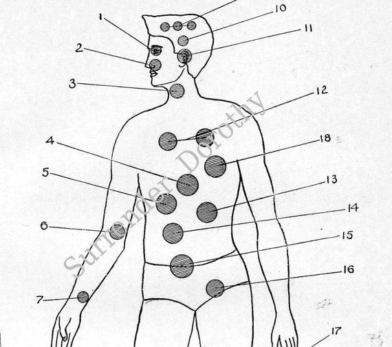 Medical Man Diagram Search For Wiring Diagrams