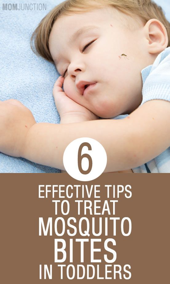 6 Effective Tips To Treat Mosquito Bites In Toddlers A Z About