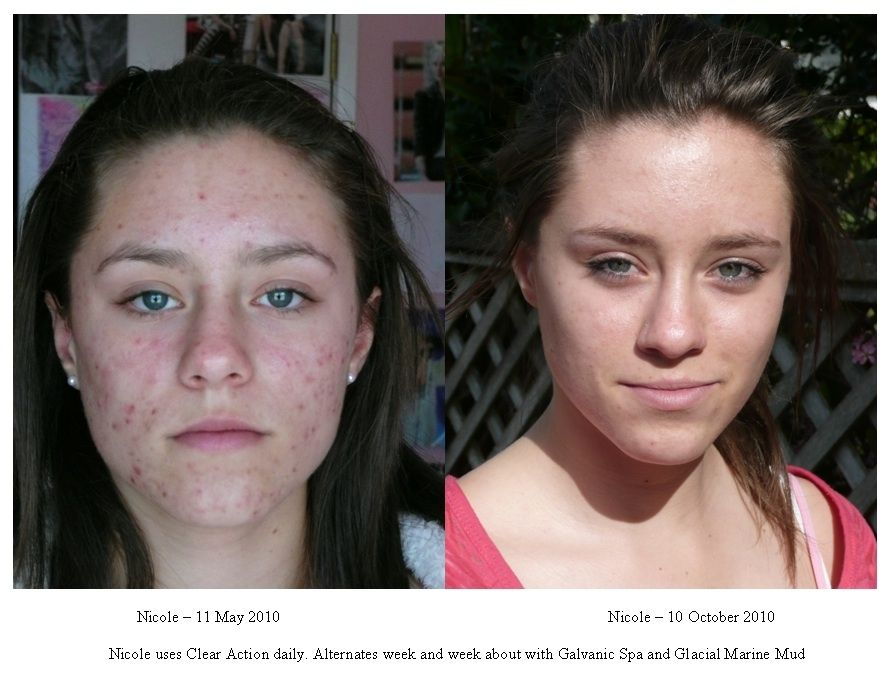 Can Acne Be Cured Naturally