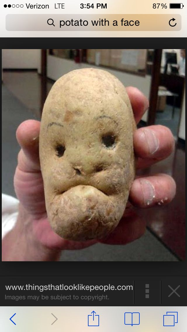Potato face!!