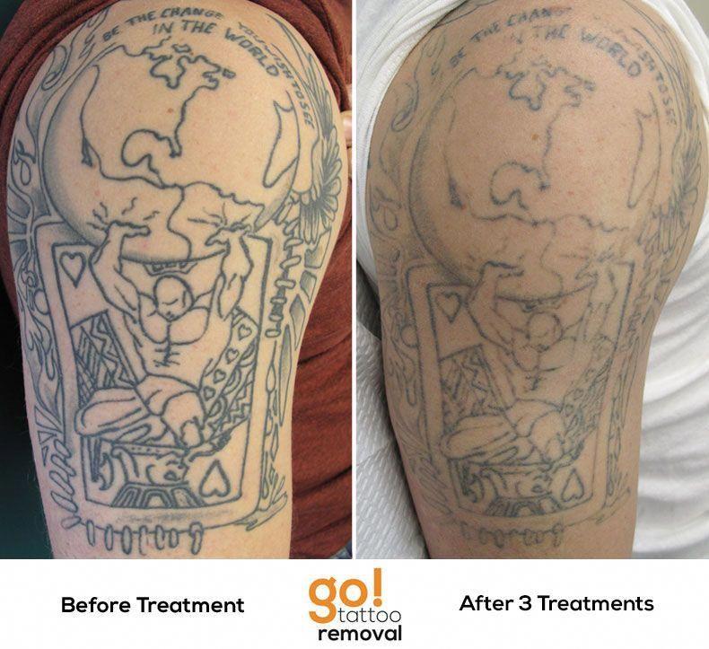 permanent makeup tattoo removal philadelphia