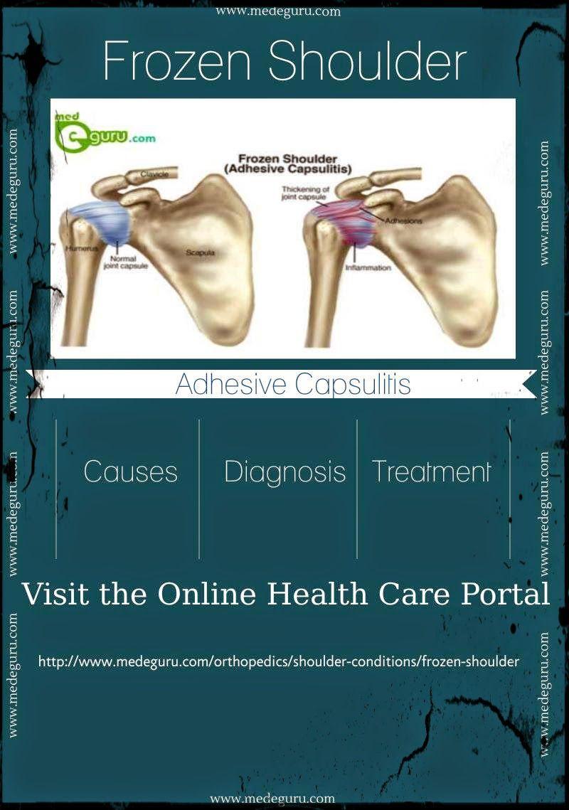 Pin On Orthopedics