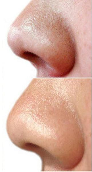 Facial hair folicles clog photo 228