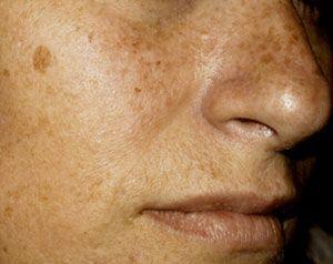 Como eliminar las manchas de la cara causadas por el sol