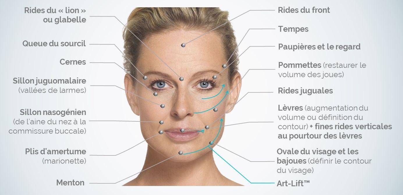 05fe99f2ce24 Les injections d acide hyaluronique Avec l âge, l organisme subit ...